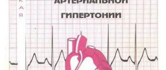 Актуальные вопросы диагностики и лечения артериальной гипертонии - Тарловская Е.И.